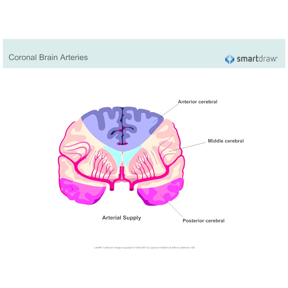 Example Image: Coronal Brain Arteries