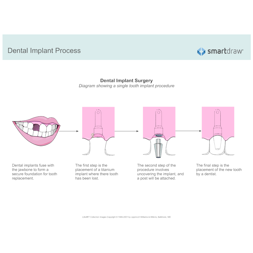 Example Image: Dental Implant Process