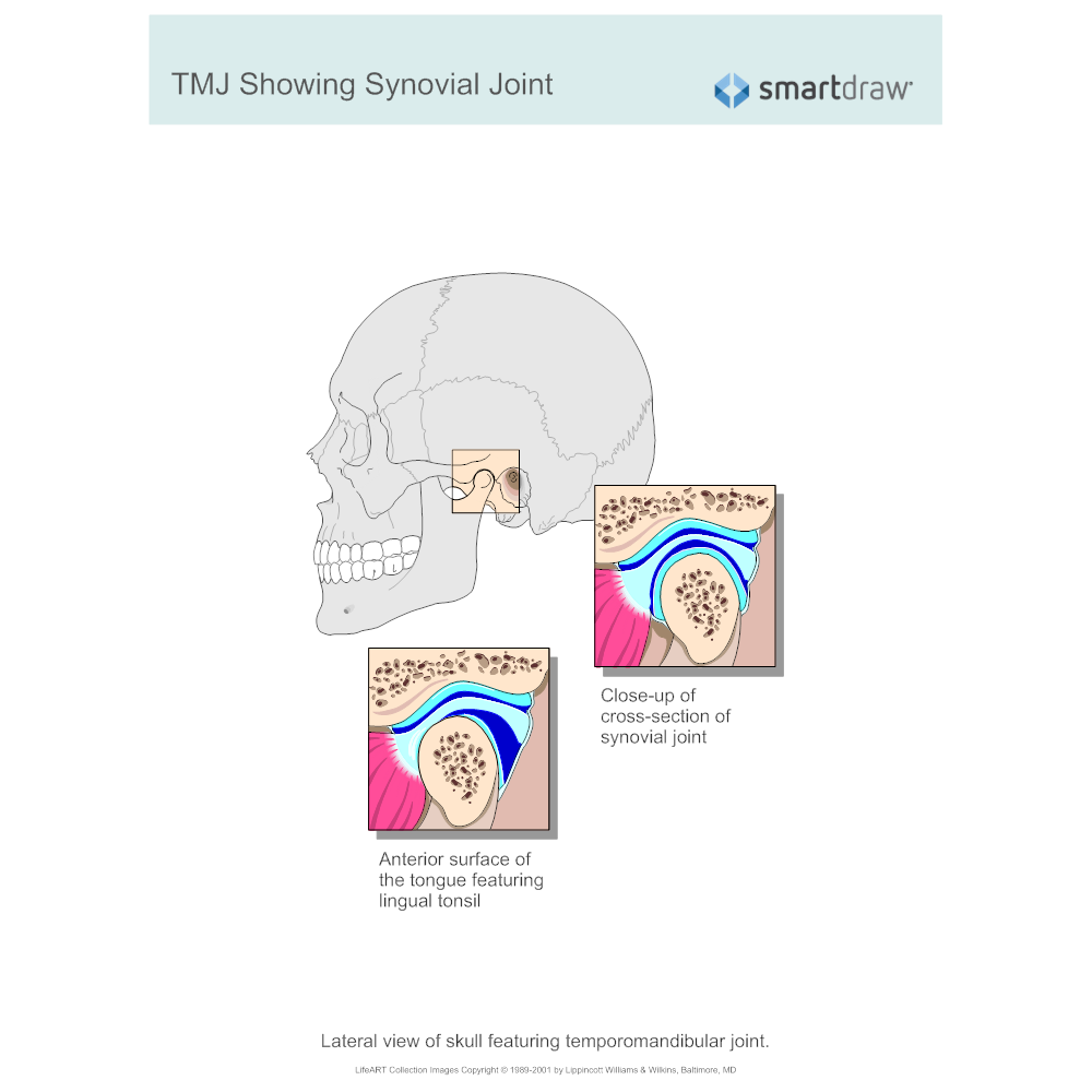Example Image: TMJ Showing Synovial Joint