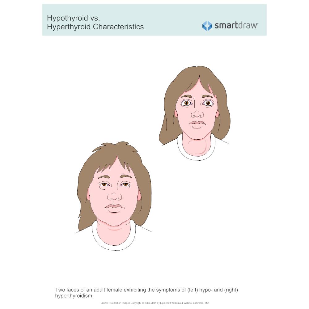 Example Image: Hypothyroid vs. Hyperthyroid Characteristics_912