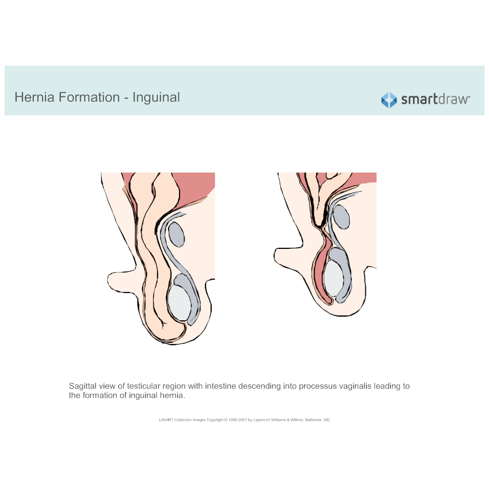 Example Image: Hernia Formation - Inguinal