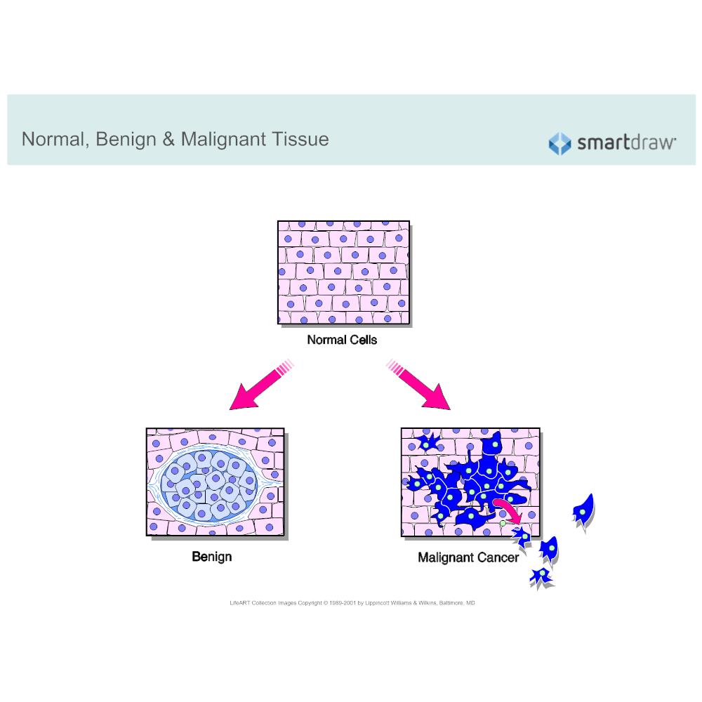 Example Image: Normal, Benign & Malignant Tissue