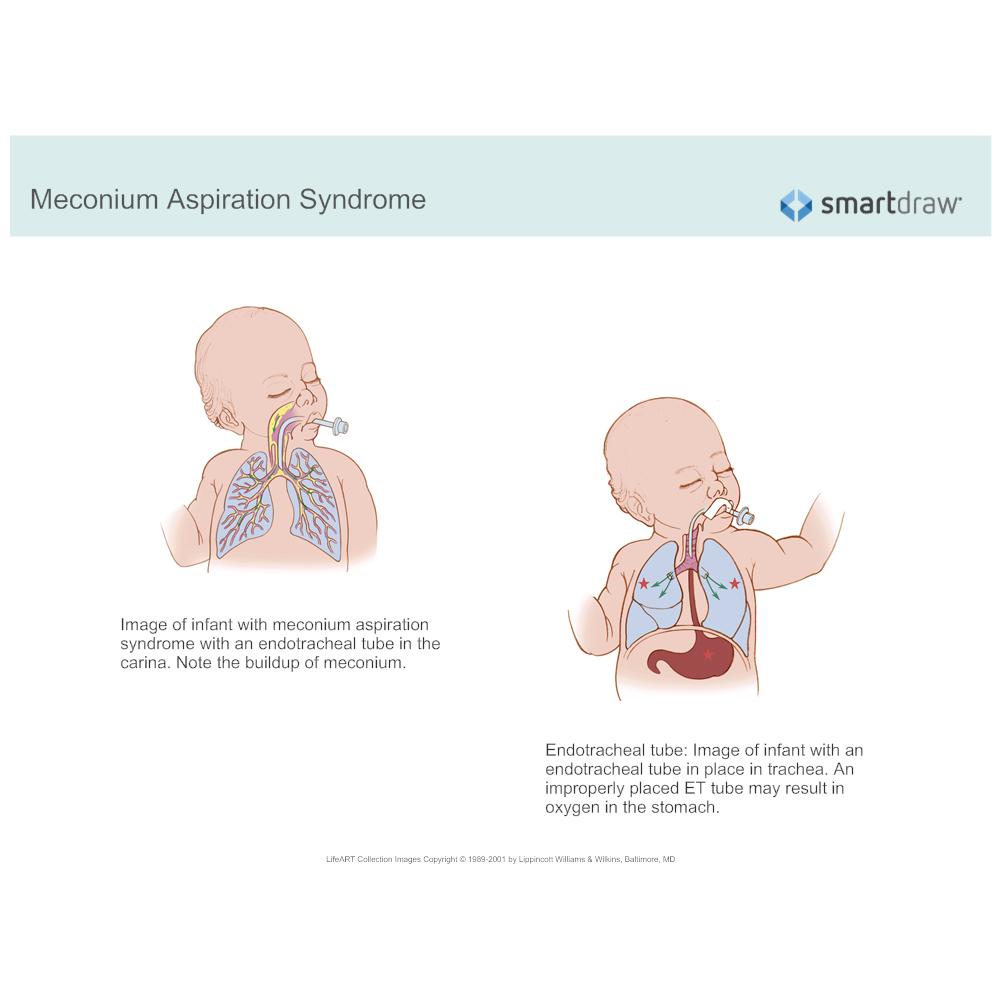 Example Image: Meconium Aspiration Syndrome