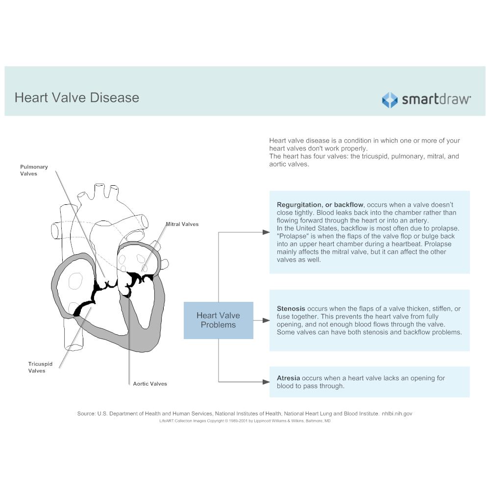 Example Image: Heart Valve Disease