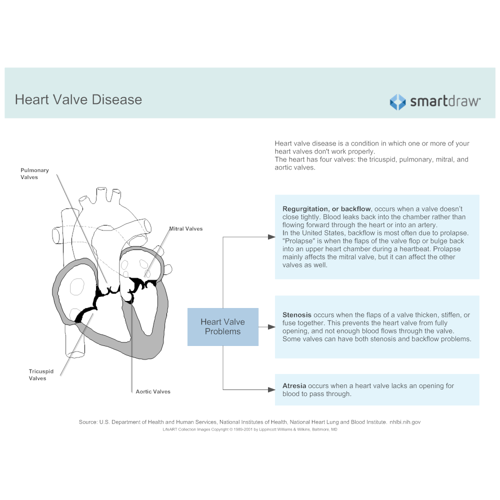 Example Image: Heart Valve Disease