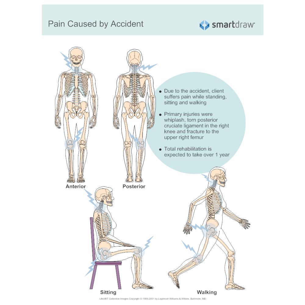 Example Image: Pain Diagram