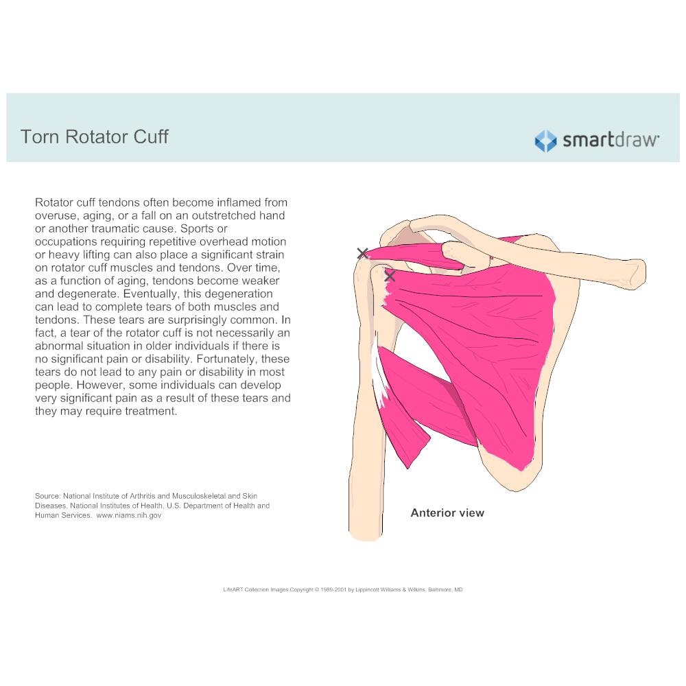 Example Image: Torn Rotator Cuff