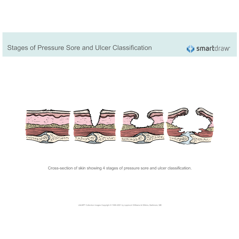 Example Image: Stages of Pressure Sore and Ulcer Classification