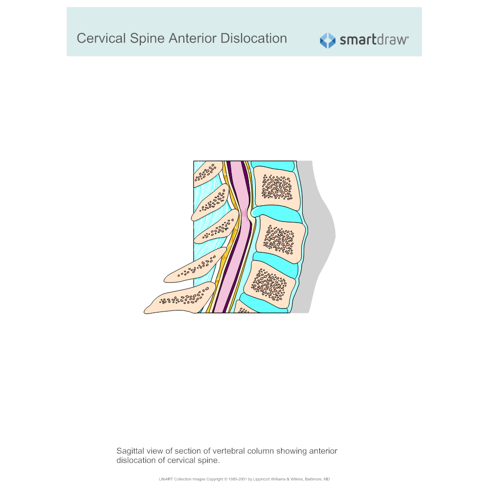 Example Image: Cervical Spine Anterior Dislocation