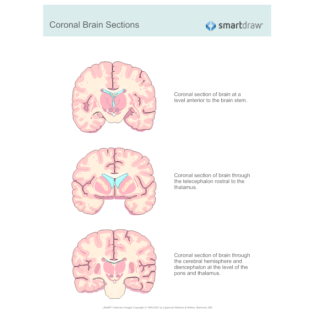 Example Image: Coronal Brain Sections