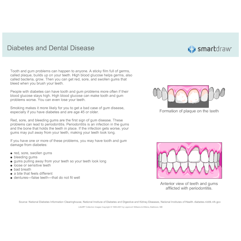 Example Image: Diabetes and Dental Disease