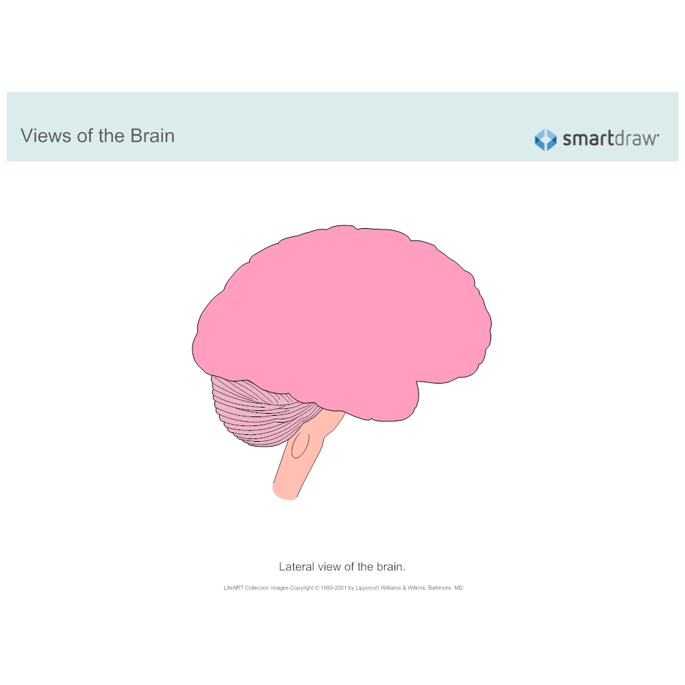 Example Image: The Brain - Lateral View - 2