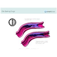 Clot Busting Drugs
