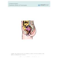Endometriosis, Common Sites of Formation