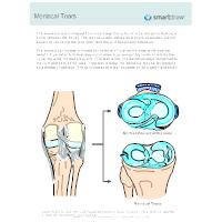 Meniscal Tears - 1