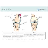 Sprain vs. Strain