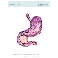 Stomach Ulcers - 3