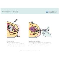 Amniocentesis & CVS