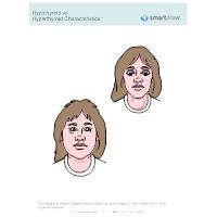 Hypothyroid vs. Hyperthyroid Characteristics_912