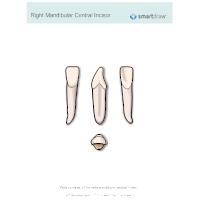 Right Mandibular Central Incisor