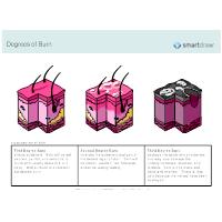 Degrees of Burn