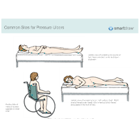 Common Sites for Pressure Ulcers