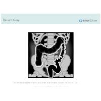 Barium X-ray
