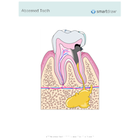 Abscessed Tooth