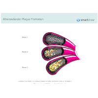 Atherosclerotic Plaque Formation