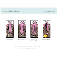 Progress of Dental Caries
