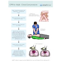 CPR for Adult 3 - Chest Compressions