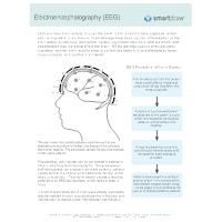 Electroencephalography