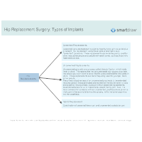 Hip Replacement Surgery - Types of Implants