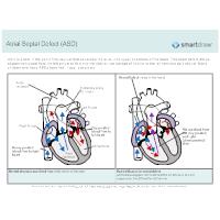 Atrial Septal Defect