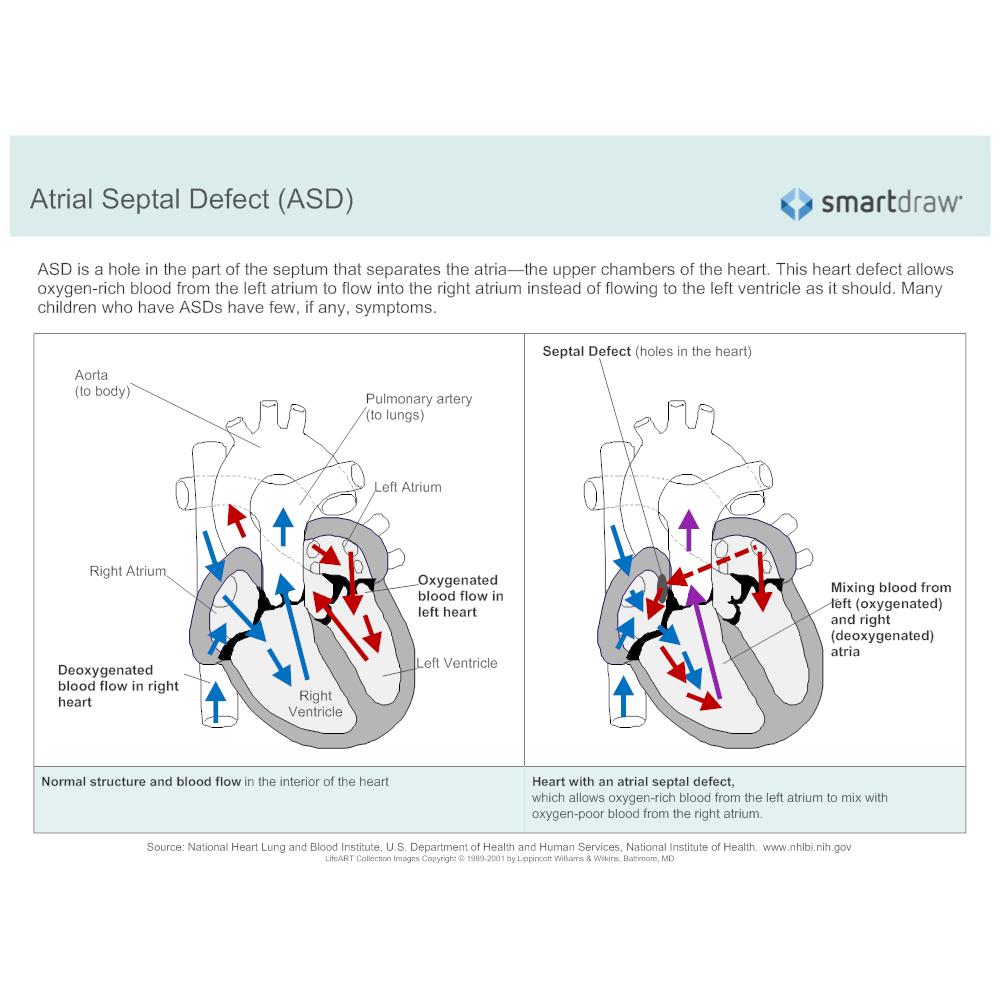 Example Image: Atrial Septal Defect