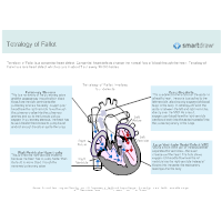 Tetralogy of Fallot