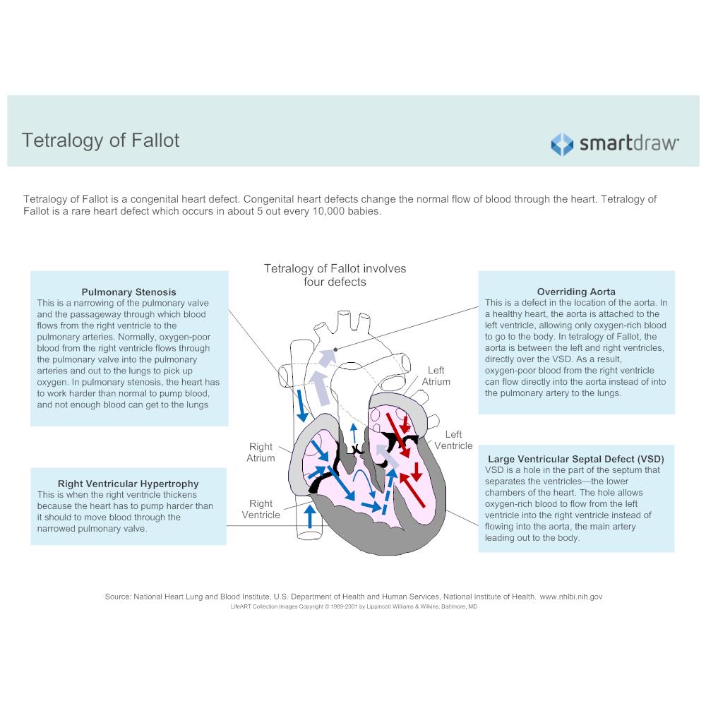 Example Image: Tetralogy of Fallot