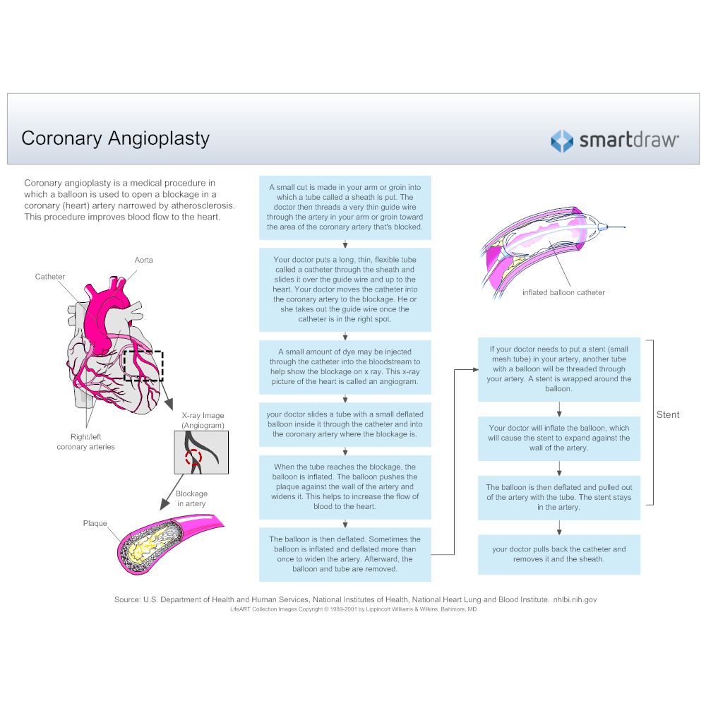 Example Image: Coronary Angioplasty