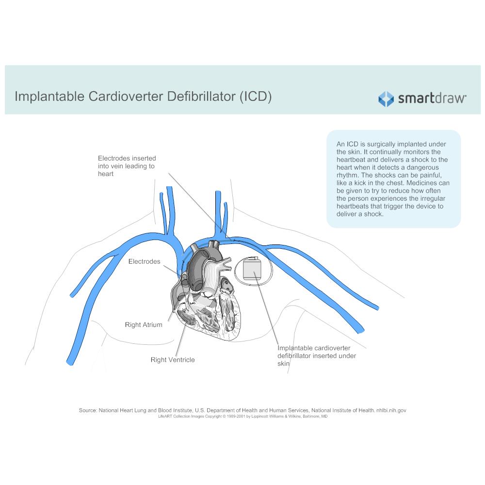 Example Image: Implantable Cardioverter Defibrillator
