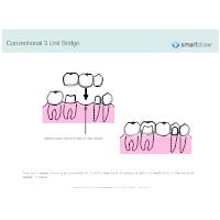 Conventional 3 Unit Bridge