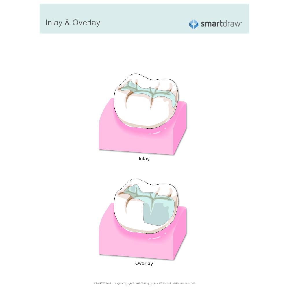 Example Image: Inlay & Overlay