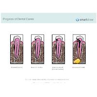 Progress of Dental Caries