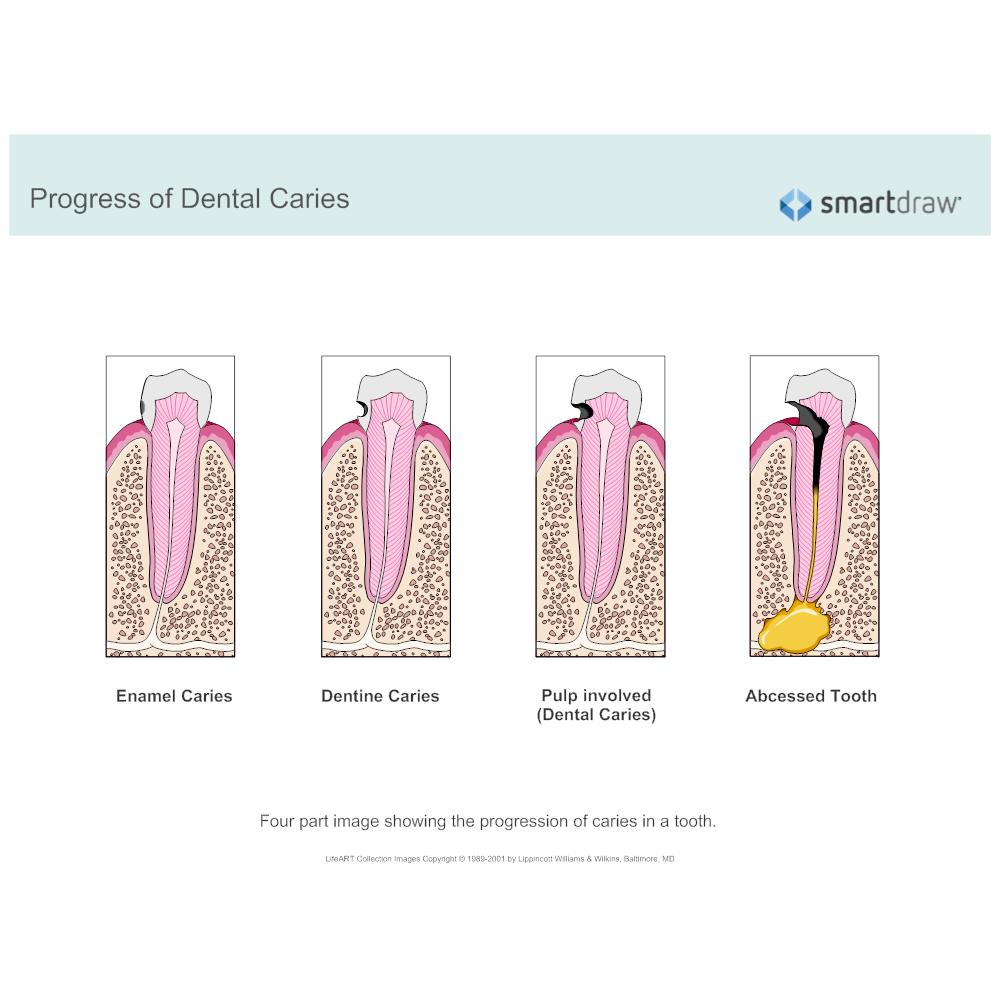 Example Image: Progress of Dental Caries