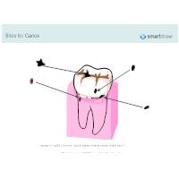Sites for Caries