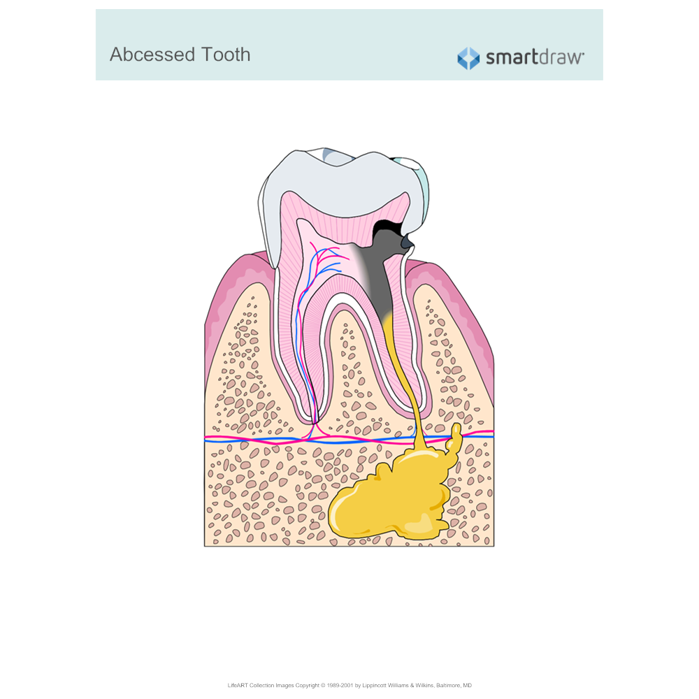 Example Image: Abscessed Tooth
