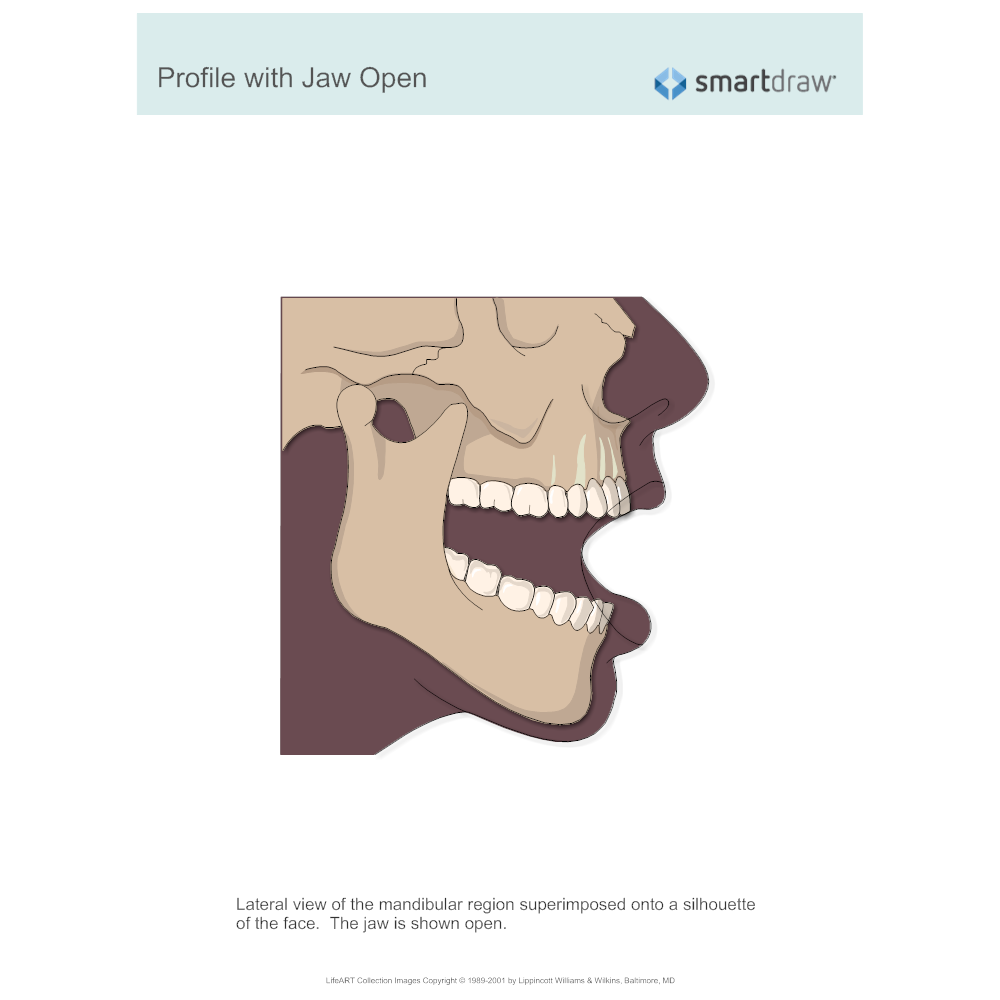 Example Image: Profile with Jaw Open