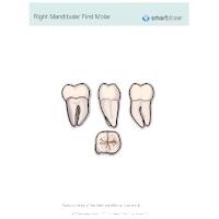 Right Mandibular First Molar