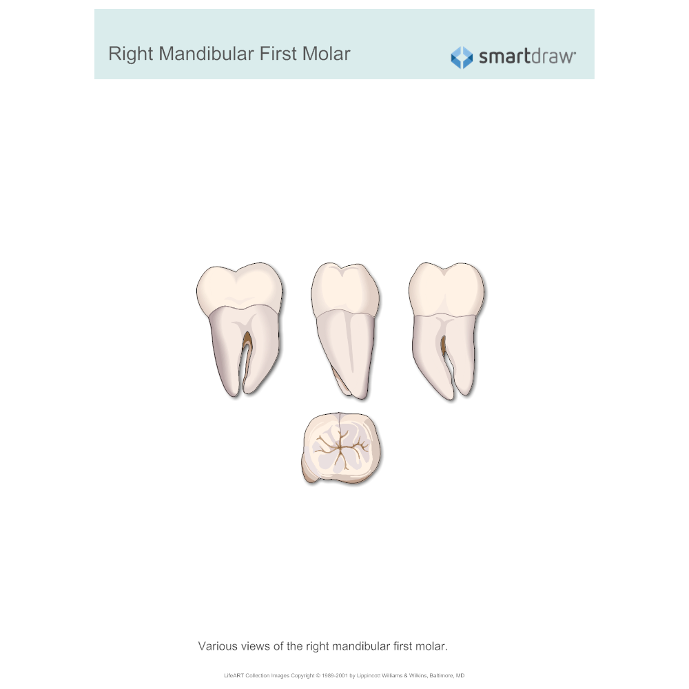 Example Image: Right Mandibular First Molar