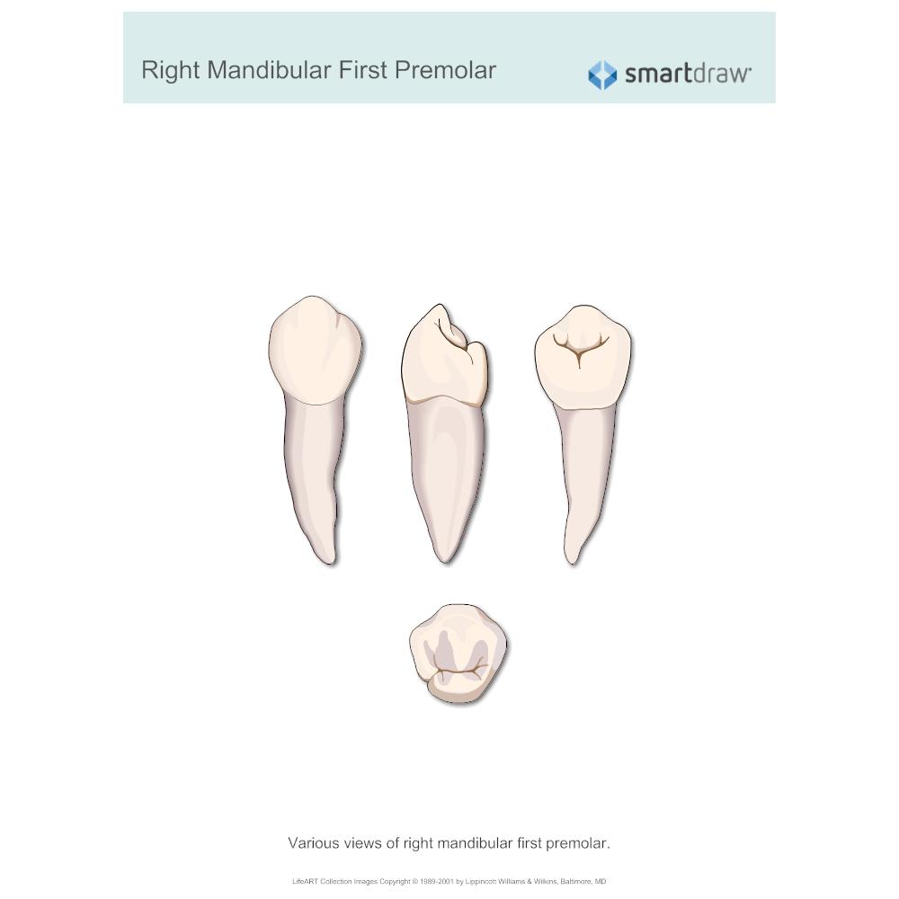 Example Image: Right Mandibular First Premolar