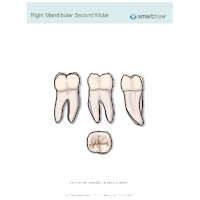 Right Mandibular Second Molar
